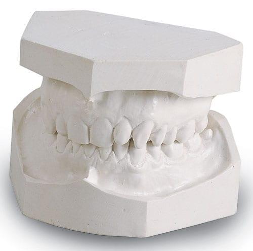 50# MM Orthodontic Plaster